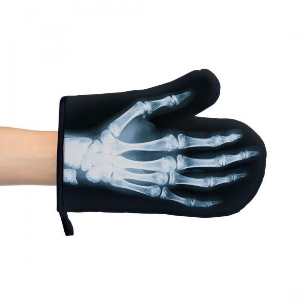 Röntgenbild Ofenhandschuh